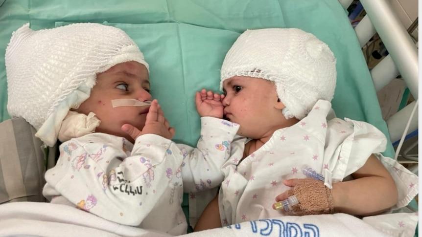 以色列的连体婴儿接受了罕见的复杂分离手术