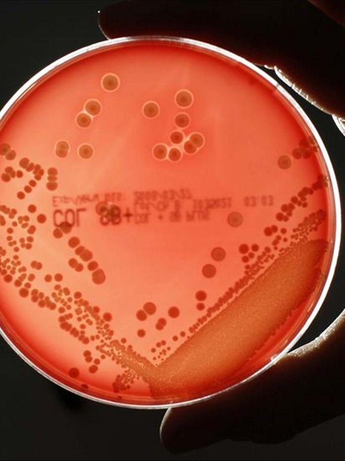 世界迫切需要新的抗生素,而新西兰的独特真菌看起来很有希望